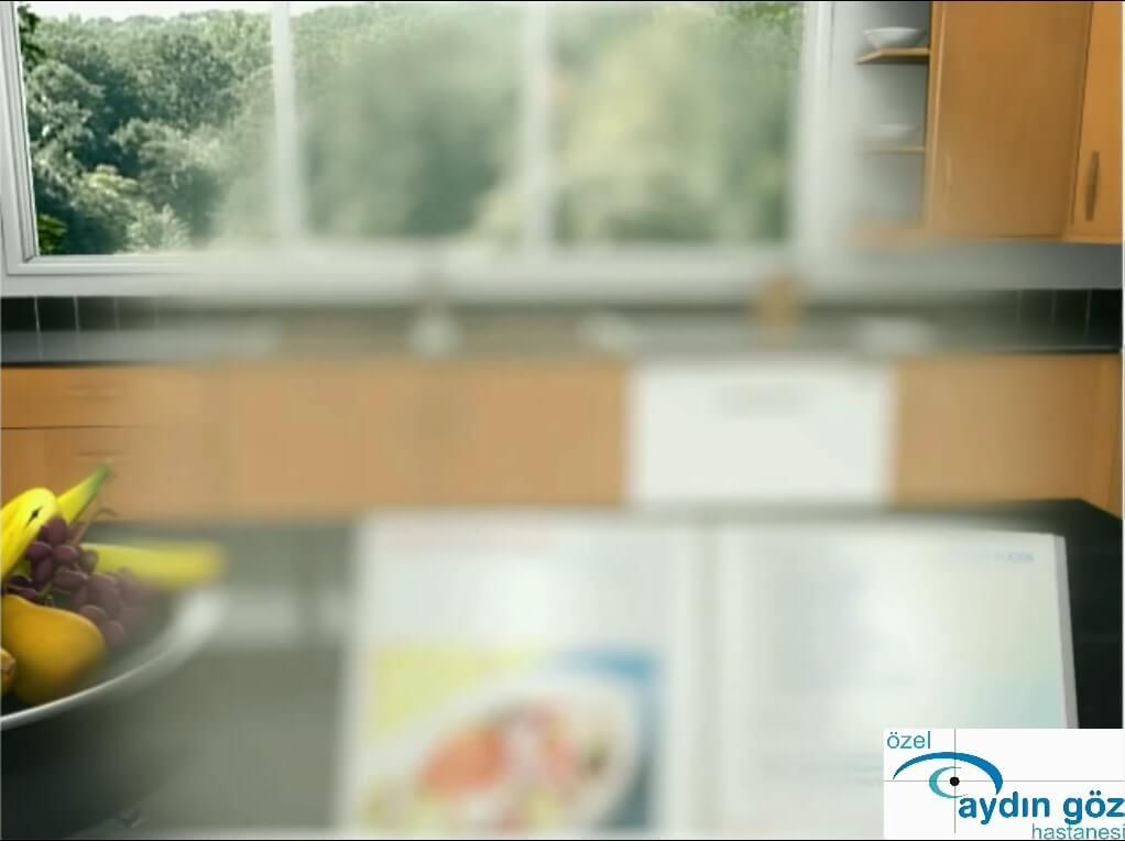 katarakt-hastaligi-2