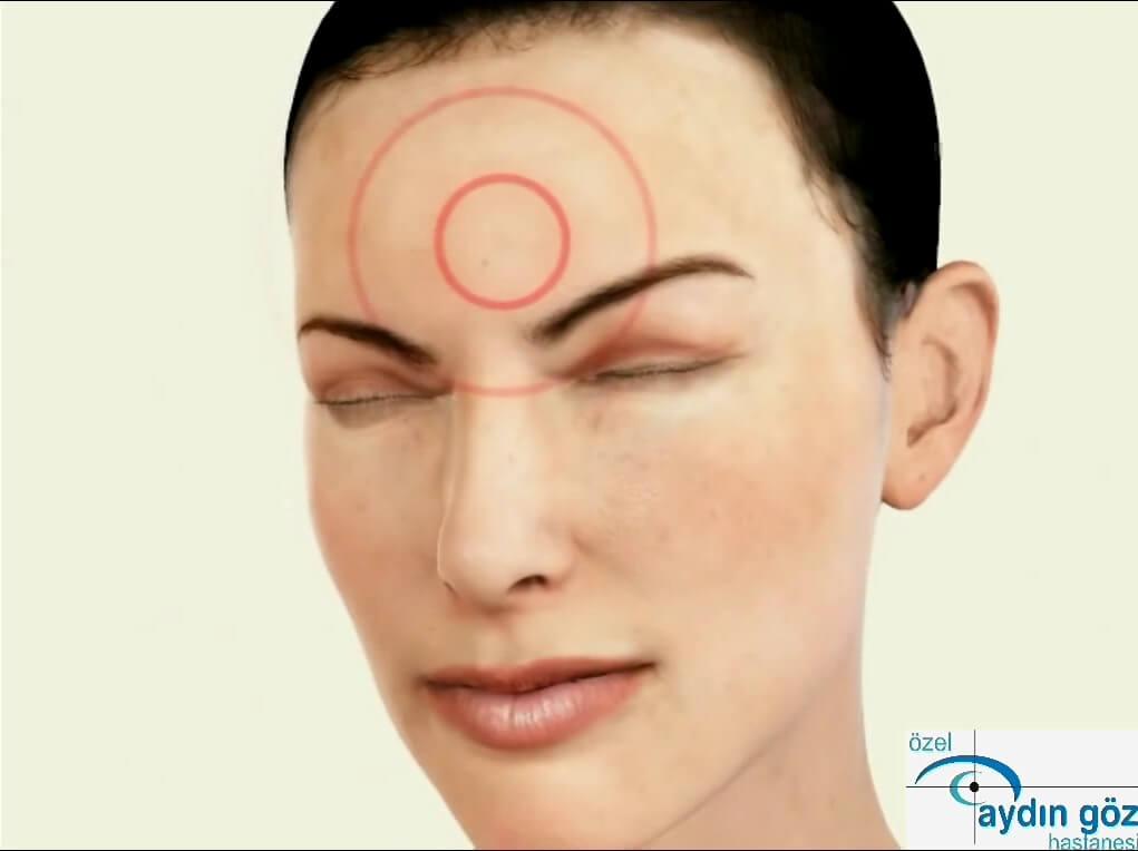 cocuklarda-goz-hastaliklari-3